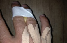 Graeme McDowell explains what really happened with his 'freak' hand injury in China