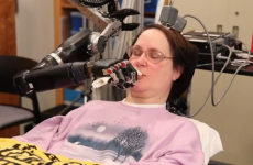 VIDEO: Quadriplegic woman powers a robotic arm with her mind