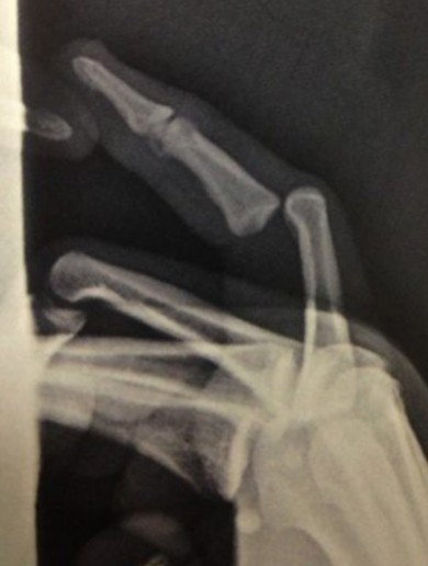 17 graphic images that prove sports injuries are worse than they sound