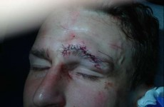 That looks painful: Robert Huth needed 28 stitches after a nasty collision with Franco Di Santo