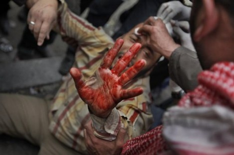 A wounded anti-government protester holds up his bloodied hand in downtown Cairo, Egypt, Thursday, Feb. 3, 2011.