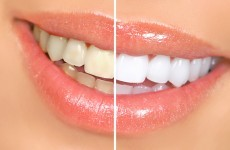 Dentists' body expresses concern over illegal teeth whitening