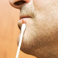 That cold sore might be causing you memory loss