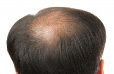 Study uncovers link between male baldness and heart disease