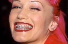 7 celebs who faced the horror of adult braces