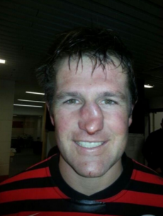 Your horrifying rugby injury pic of the day