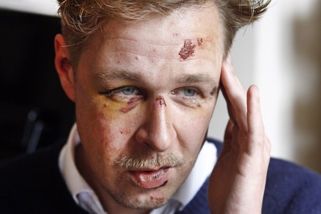 Wilfred de Bruijn, who was beaten unconscious near his home in central Paris.
