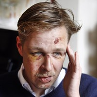 Homophobic assaults surge in France amid gay marriage debate