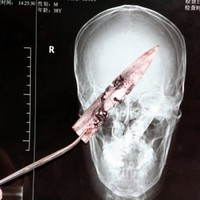 10cm blade removed from man's head after four years