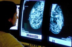 Stronger breast cancer surveillance will reduce health service costs - report