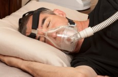 100,000 Irish have sleep apnea - but thousands more undiagnosed