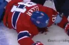 A brutal and illegal hit left a hockey player in a pool of blood last night