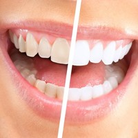 Fancy getting your teeth whitened? You need to know this