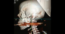 Woman shot in the mouth by harpoon - and survives