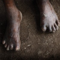 Ireland records first known case of leprosy in decades