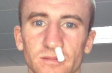 Broken nose puts Barnes out of European Championships final