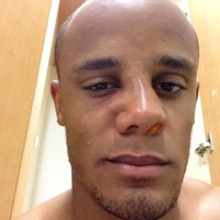Vincent Kompany played on with a concussion last night