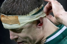'He could have been dead 10 minutes later' - Chris Nowinski on BOD blow against France