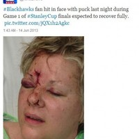Gruesome picture shows aftermath of fan struck in face by a puck at Stanley Cup finals