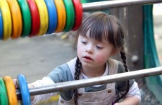 "Children with Down Syndrome ""let down"" by resource allocation"