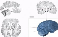 Scientists create most detailed map ever of human brain