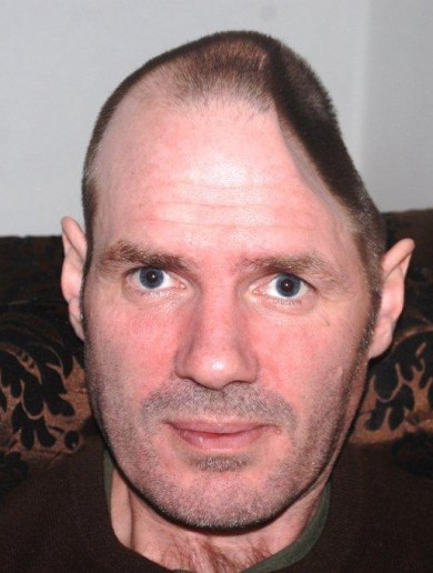 PHOTOS: This man had his head rebuilt after surgery to remove a near fatal infection