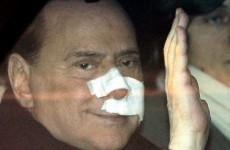 Surgery for Berlusconi after 2009 statuette attack