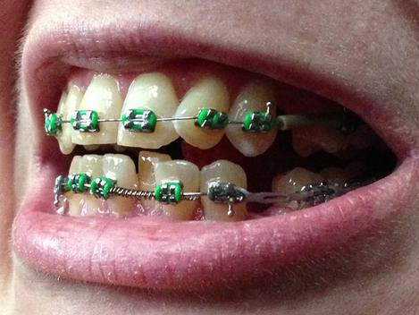 0214-braces
