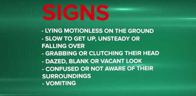 signs of concussion