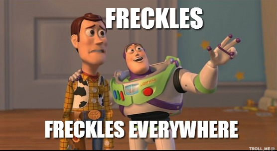 freckles-freckles-everywhere