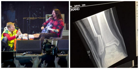 dave-grohl-leg-2-630x315
