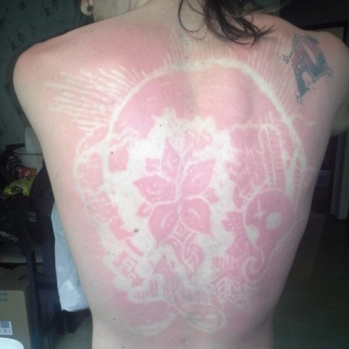 That awful sunburn actually turned out to be pretty badass but still hurts like a MF #sunburn #ouch #sunburnart