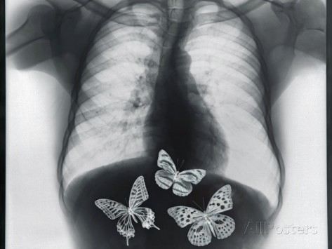 thom-lang-x-ray-of-butterflies-in-the-stomach