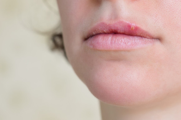 Some people are just learning that cold sores are herpes