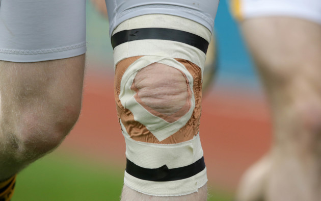 A general view of a knee injury