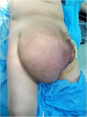 Massive hernia