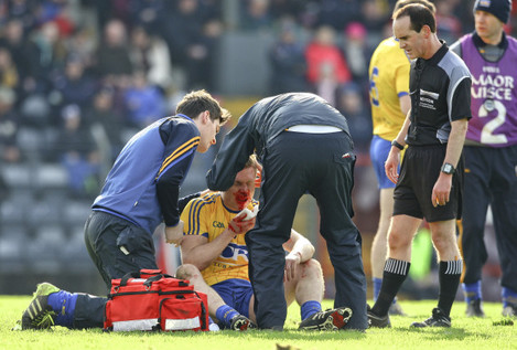 Niall Daly sustains a facial injury