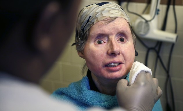 Chimp Attack-Face Transplant