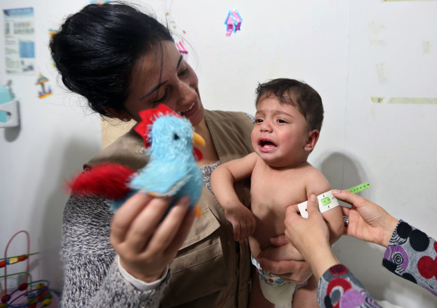 Mideast Lebanon Syria Malnourished Children