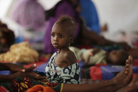 Nigeria Starving Children