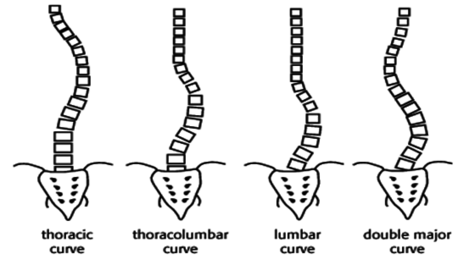 Scoliosis Spine