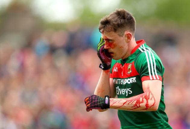 Diarmuid O'Connor injured