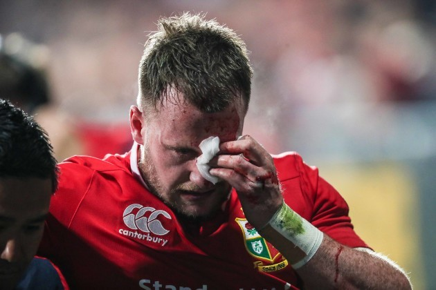 Stuart Hogg goes off with a blood injury