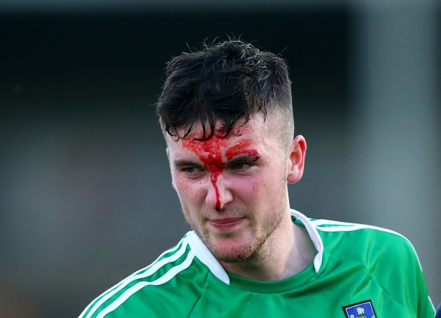Declan Hannon