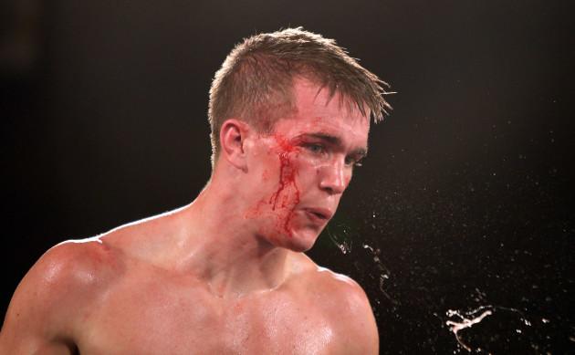 A bloodied Jamie Kavanagh