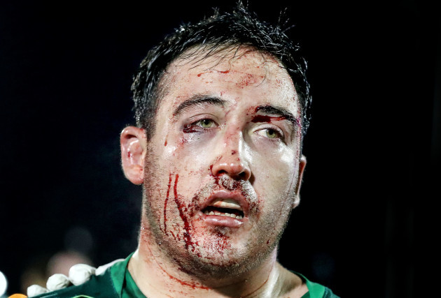 Denis Buckley with a bloodied face after the game