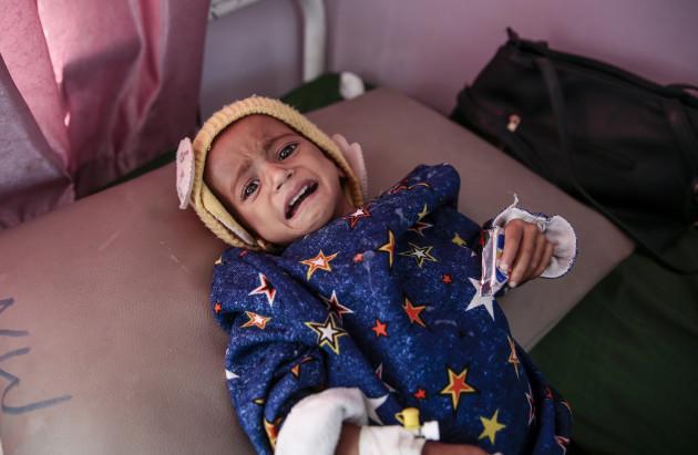 Children malnutrition in Yemen