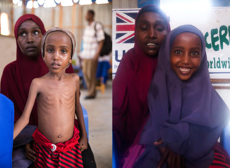 Yasmiin when arrived at Concern clinic on March 15 and 12 weeks later after treatment