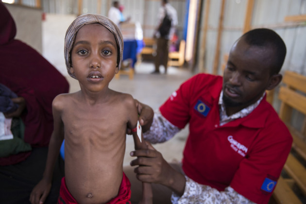 Yasmiin (5) when she weighed just 12.5kg in March being treated by Hashim Jelle at a Concern Worldwide centre in Mogadishu