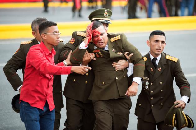 VENEZUELA-CARACAS-MADURO-SPEECH-ATTACK